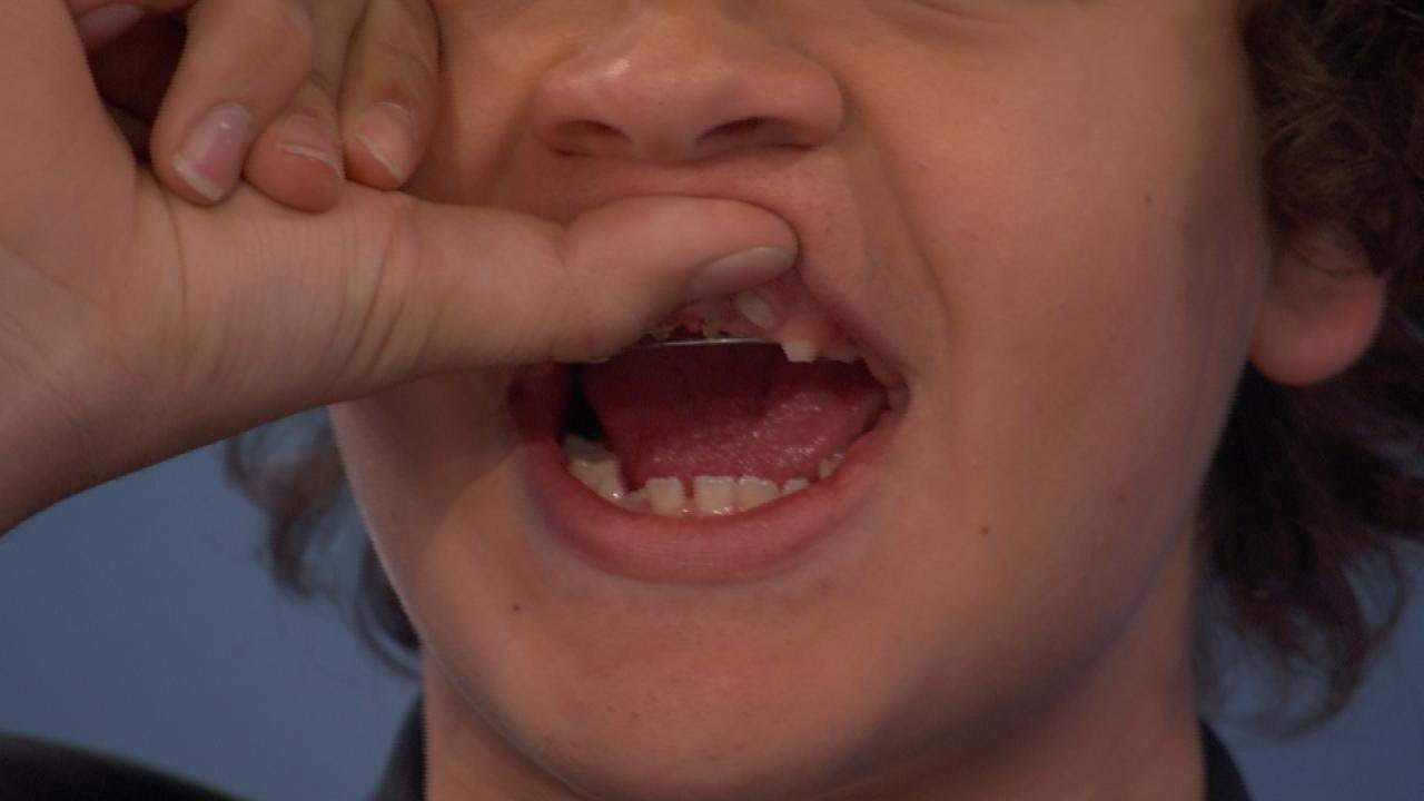 Gaten Matarazzo Teeth - what happened to them